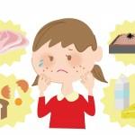 赤ちゃんのアレルギーの原因はママ?妊娠中の食生活とポイント